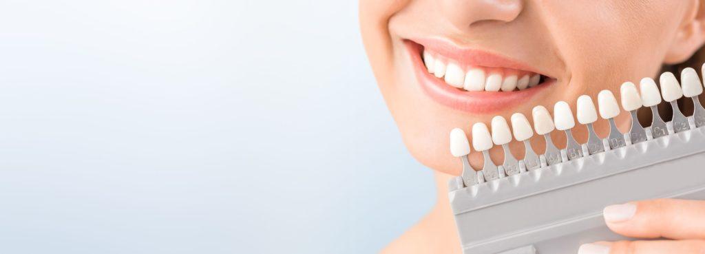 Tanden bleken Estelle's Beautysalon